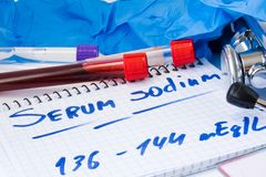 Sodium in serum or blood in basic metabolic test. Laboratory test tubes with blood, stethoscope, smear or film and gloves are near. Note with text serum sodium Stock Image