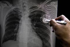 Soft and blurry image chest x-ray film of a patient with cardiac pacemaker, also with congestive heart and cardiomegaly.By surgery. And the doctor`s hands are stock photo