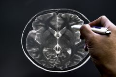 Soft and blurry image:MRI Brain of a patient And the doctor`s hands are checking the size. royalty free stock photos