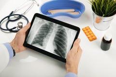 Soignez analyser des résultats patients de rayon X de poumon sur le comprimé numérique photos stock