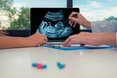 Soignez montrer un balayage de foetus sur un ordinateur portable à une patiente de femme Soins de santé au sujet de bébé pendant  image libre de droits