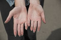 Soiled female hands after the fall royalty free stock photos