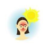 solbränna Arkivbild