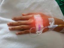 Solução salina na mão paciente Foto de Stock