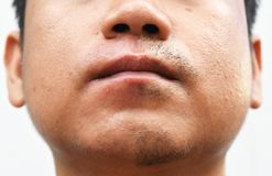 Some mustache after withdrawal mustache on surface young asian man face skin do not take care for a long time. Detail some mustache after withdrawal mustache on Stock Image