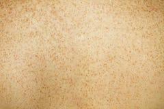 Sommersprossige rückseitige Haut Stockfoto
