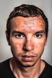 Sonnenbrandhaut auf männlichem Gesicht Stockbild
