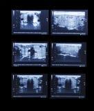 Sonography upper abdomen medical examination Royalty Free Stock Image