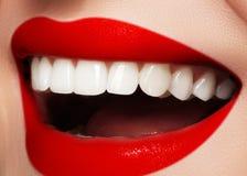 Sonrisa brillante con blanquear los dientes y los labios rojos brillantes Foto dental Macro del maquillaje atractivo de la moda Foto de archivo