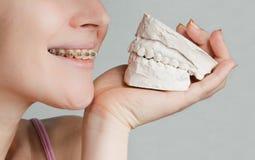 Sonrisa con el modelo de la quijada del corchete y del yeso Imagen de archivo libre de regalías