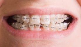 Sonrisa con las paréntesis   Foto de archivo libre de regalías