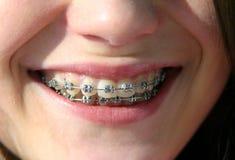 Sonrisa con los corchetes en los dientes imagen de archivo libre de regalías