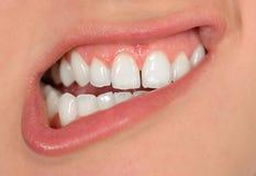 Sonrisa con los dientes Foto de archivo libre de regalías