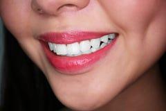 Sonrisa de la mujer con los dientes blancos Fotos de archivo