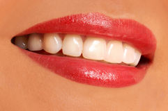 Sonrisa de la mujer. dientes blancos. Imagen de archivo libre de regalías
