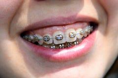 Sonrisa de la mujer joven con el corchete Imagen de archivo libre de regalías