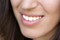 Sonrisa de los dientes de las mujeres Imágenes de archivo libres de regalías