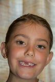 Sonrisa del diente delantero Foto de archivo libre de regalías