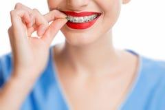 Sonrisa del ` s de la mujer con los apoyos del diente Imagenes de archivo