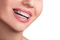 Sonrisa femenina de los dientes de los apoyos Foto de archivo