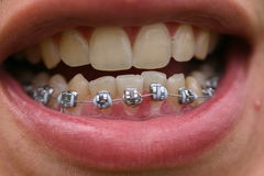 Sonrisa metálica Imagen de archivo libre de regalías