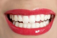 Sonrisa perfecta de los dientes de la mujer hermosa Imagen de archivo libre de regalías