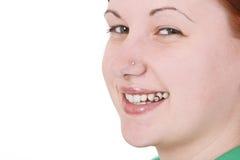 Sonrisa perforada Imagen de archivo libre de regalías