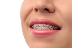 Sonrisa sana - dientes con los apoyos dentales Fotografía de archivo