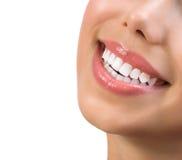 Sonrisa sana. Dientes que blanquean Foto de archivo libre de regalías