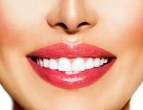 Sonrisa sana. Dientes que blanquean imagen de archivo