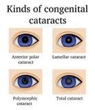 Soorten aangeboren cataracten Royalty-vrije Stock Afbeelding