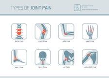 Soorten gezamenlijke pijn vector illustratie