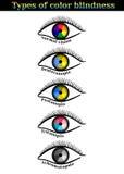 Soorten kleurenblindheid Royalty-vrije Stock Foto's