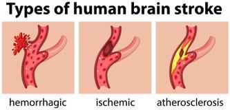 Soorten menselijke hersenenslag vector illustratie