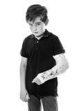 Sore broken arm. Young boy looking unhappy with a broken arm stock photo