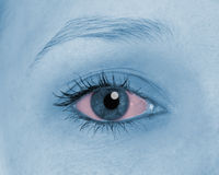 Sore eyes, shown red Stock Images