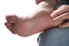 Sore foot royalty free stock images