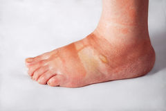 Sore foot with blisters Stock Image
