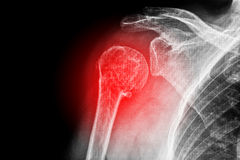 Sore human shoulder Royalty Free Stock Photo