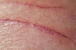 Sore inflamed scratch on human skin. Strong sick scratch wound infection on human skin royalty free stock photo