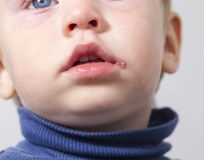 Sore on the lip of the child  herpes Stock Images