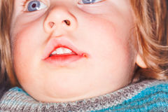 Sore on the lip of the child herpes Royalty Free Stock Photos