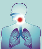 Sore throat. Vector illustration of person with detailed drawing of lungs,and sore throat Royalty Free Stock Images
