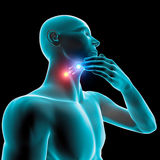 Sore throat inflammation, redness, pain burning, tablet and care Royalty Free Stock Photos