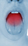 Sore throat, shown red Stock Images