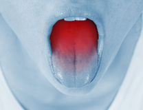 Sore throat, shown red Royalty Free Stock Photo