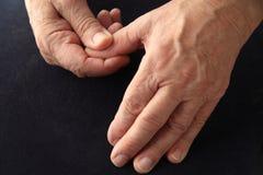 Sore thumb on senior man Royalty Free Stock Image