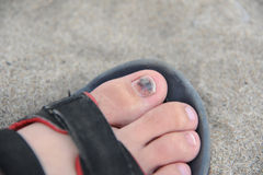Sore toe Stock Photos