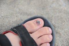 Sore toe. Black nail of right toe stock photos