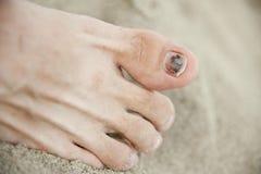 Sore toe. Black nail of right toe Royalty Free Stock Photography